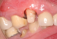 Periodontal Lengthening Existing Tooth